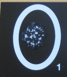 Видимая агглютинация частиц латекса, образование комочков- результат